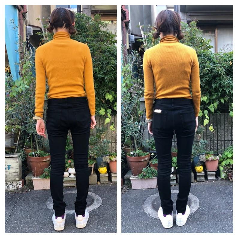 京都八幡 女性 背中の痛み、機能性側わん症(ヘビ背) 自分で何とかできるの?