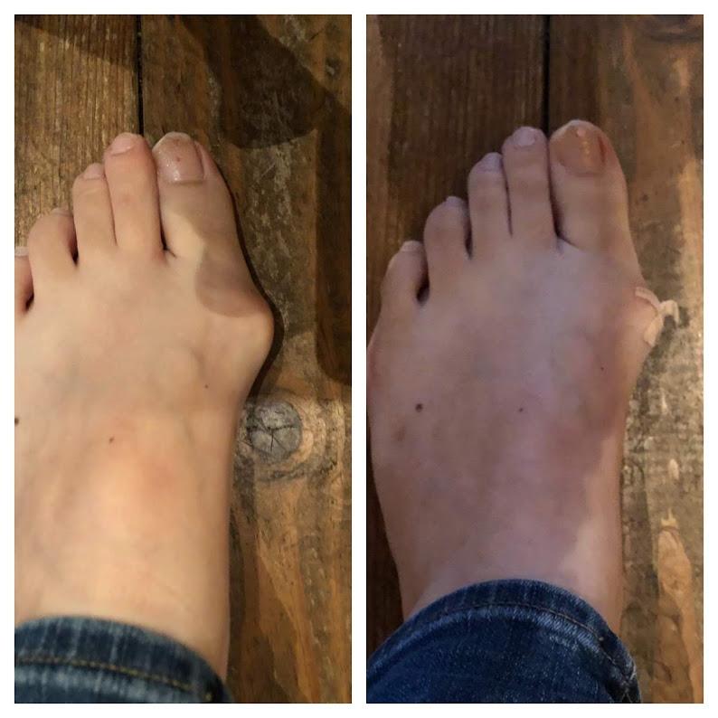 外反母趾、ハンマートウ、内反小趾など足のトラブル